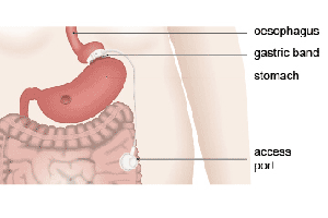 gastric-banding