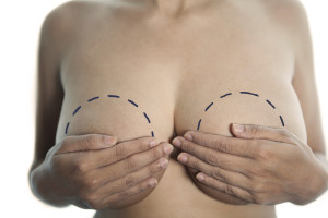Health Concept: Breast Implant