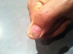 Dan's thumb