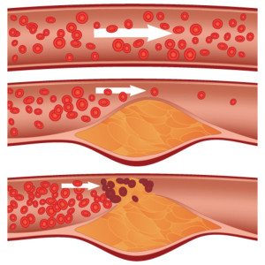 Cholesterol plaque in artery (atherosclerosis) illustration. Top